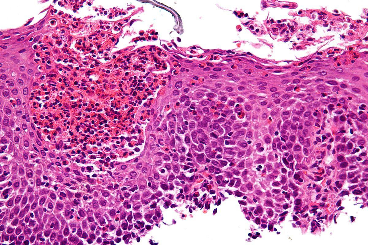 1200px-Eosinophilic_esophagitis_-_very_high_mag